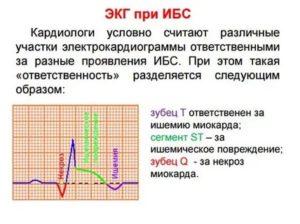 Температура при заболеваниях сердца