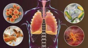 Стафилококк пневмония