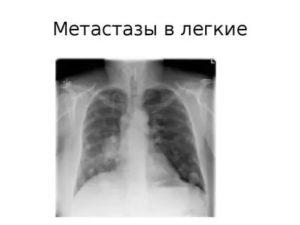 Вторичный генез легких