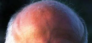 Почему идут мурашки по голове
