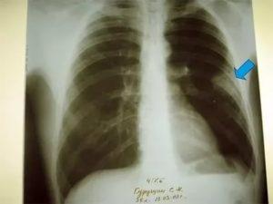 Спайки на легких после пневмонии
