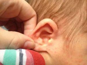 Шелушение за ушами у ребенка