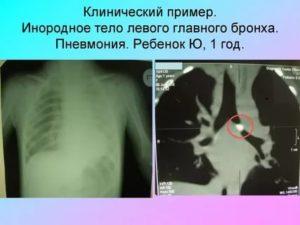 Инородное тело в легких у ребенка симптомы