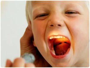 Стрептококковая ангина у детей