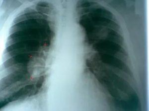 Как выглядит рак легких на рентгене фото