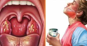 Запах из горла при глотании