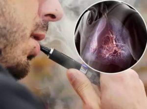 Болит живот от электронной сигареты