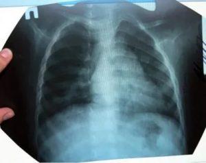 Рентген лёгких при пневмонии