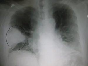 Как выглядит пневмония на снимке фото