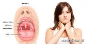 Болит горло уже месяц температуры нет