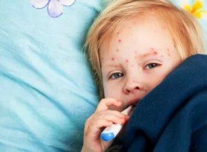 Может ли взрослый заразиться скарлатиной от ребенка