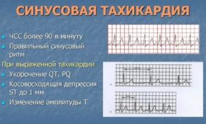 Тахикардия при температуре