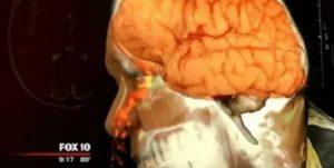 Мозговая жидкость течет из носа