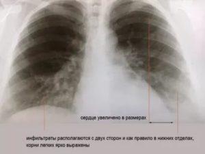 Снимок при пневмонии у ребенка