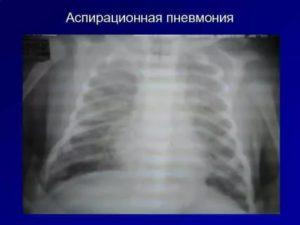 Аспирационная пневмония у новорожденных последствия