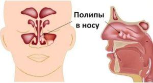 Полип в гайморовой пазухе симптомы