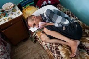 Смерть от туберкулеза наступает в результате