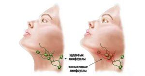 Рак подчелюстных лимфоузлов симптомы