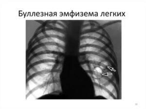 Буллезная эмфизема легких операция