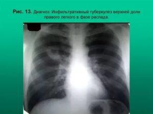 Туберкулез распад легких