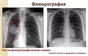 Можно ли курить перед флюорографией