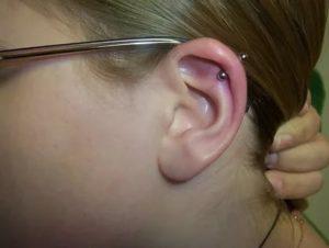 Прокол верхней части уха