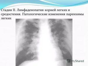 Лимфаденопатия средостения легких