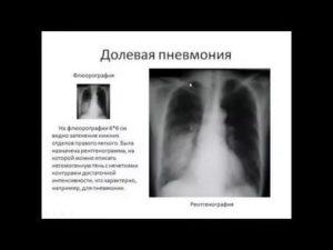 Как обмануть флюорографию