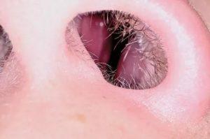 Шишки в носу у ребенка