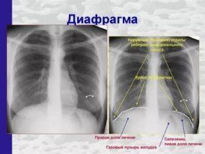 Синусы легких на рентгенограмме