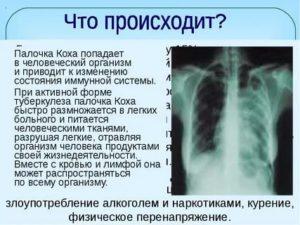 Какое заболевание вызывает палочка коха