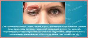 Болит бровь над глазом при нажатии