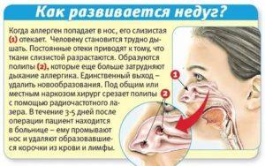 Ребенок тяжело дышит носом но соплей нет