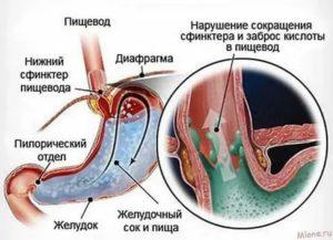 Выброс кислоты из желудка в горло ночью