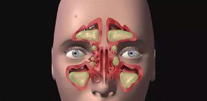 Левосторонний гайморит как лечить