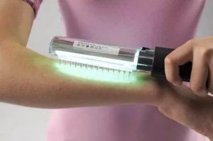 Ультрафиолетовая терапия