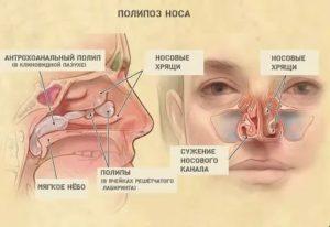 Почему заложена одна ноздря