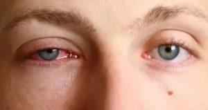 Глаз слезится и покраснел
