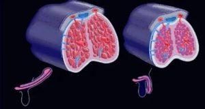 Кавернозный фиброз симптомы