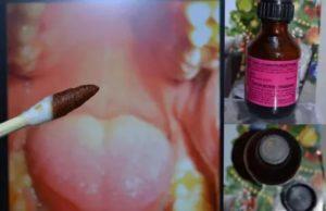 Чем смазать горло при ангине