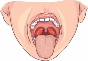 Красные прожилки в горле