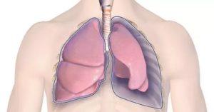 Поддувание легких при туберкулезе последствия