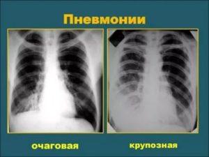 Можно ли по флюорографии определить пневмонию