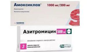 Амоксиклав или азитромицин что лучше