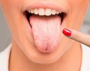 Туберкулез языка фото