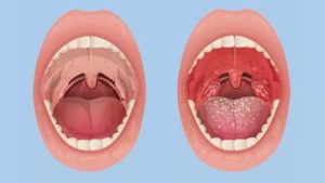 Хронический тонзиллит лечение народными средствами