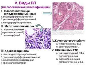 Умеренно дифференцированный плоскоклеточный рак