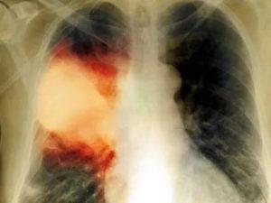 Остаточные явления после пневмонии на рентгене