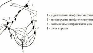 Надключичные лимфоузлы расположение схема