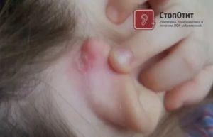 Ранки за ушами у ребенка